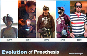 Evolution of prosthesis